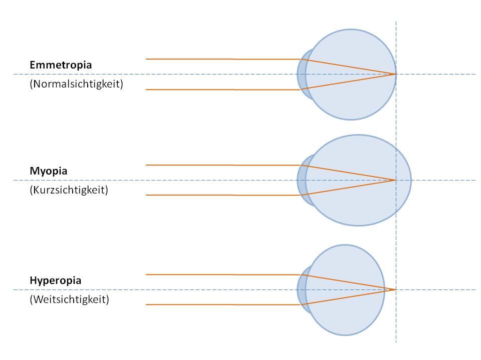 optik inspektor kurzsichtig weitsichtig myop hyperop