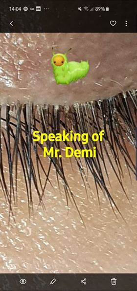 Searching for Mr Demodex der optik inspektor mites blepharitis