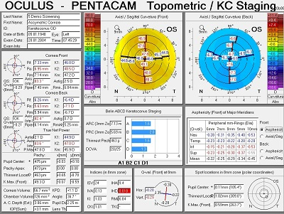 topography cornea der optik inspektor