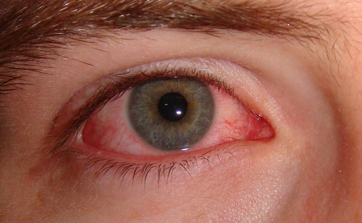 COVID-19 Bindehautentzündung